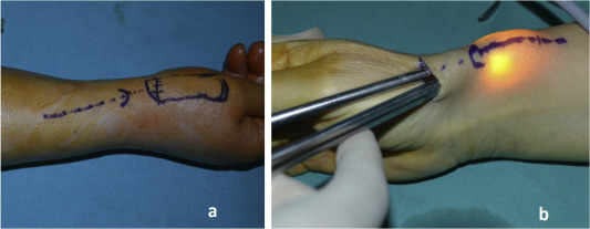 de quervain syndrome surgery recovery