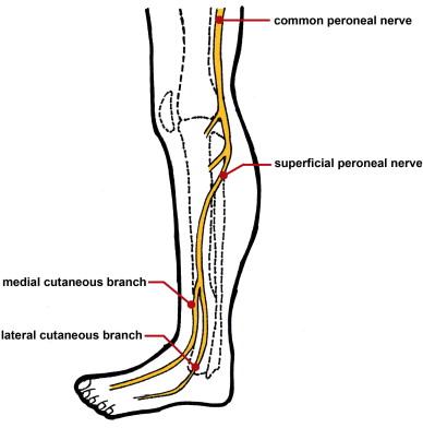 Lipofibromatous hamartoma of the superficial peroneal nerve: Two ...
