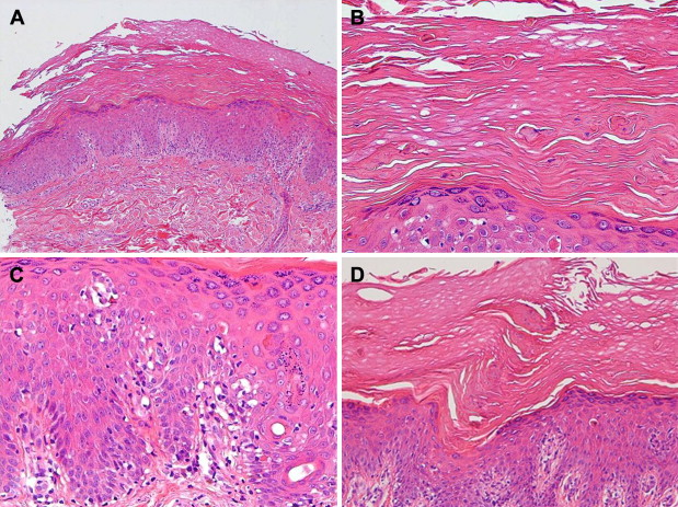 Overlap syndrome of type Wong variant dermatomyositis and