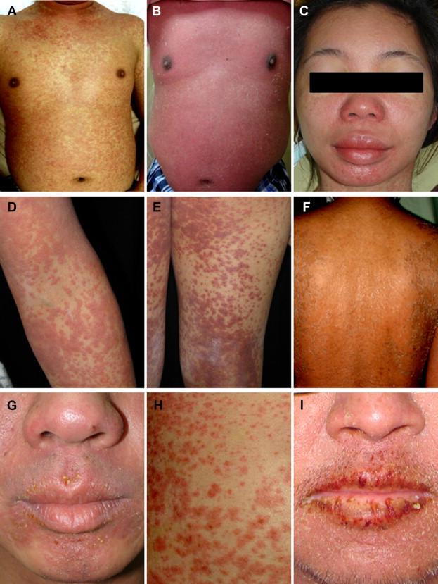 Dapsone dress syndrome images