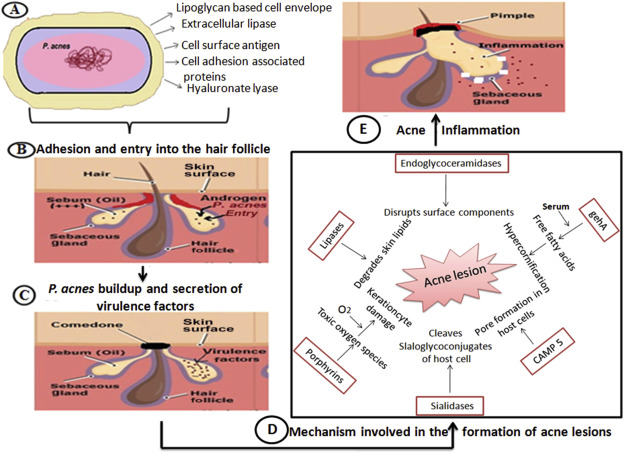 New Insights Into Acne Pathogenesis Exploring The Role Of Acne