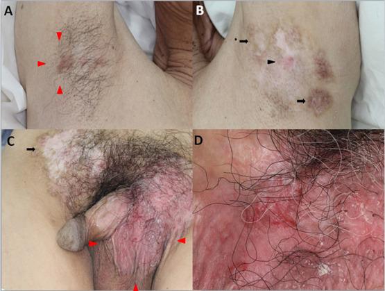 paget disease Vulva