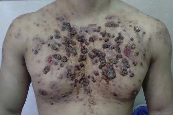 Acne Conglobata Steroids