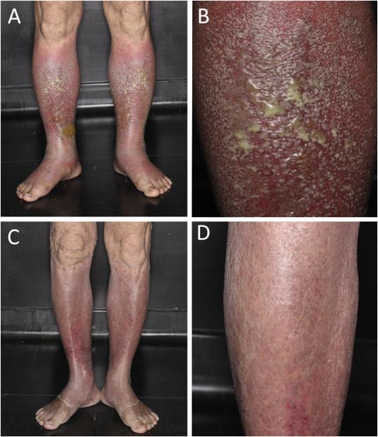 Flare-up of pustular psoriasis after ustekinumab therapy: Case