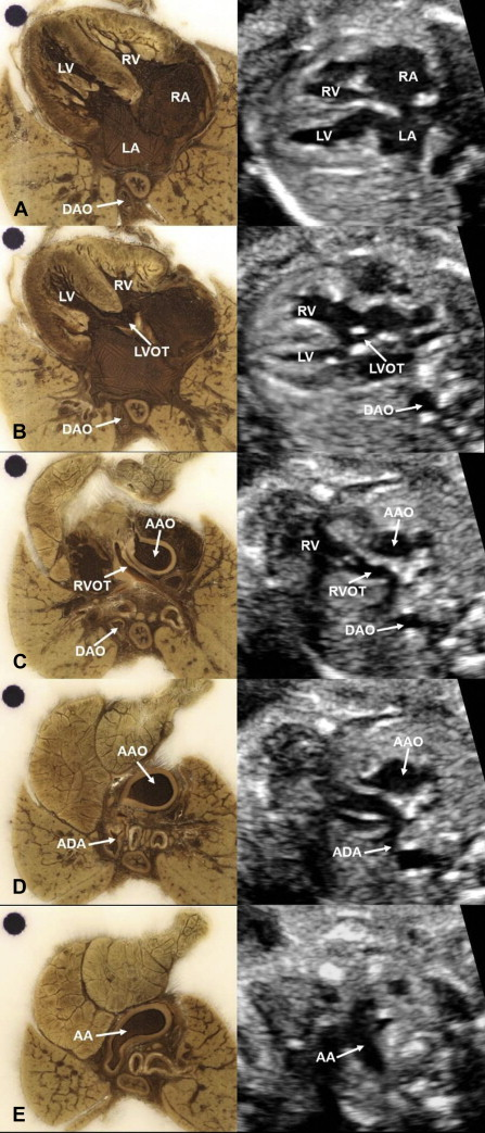 Establishment of a database of fetal congenital heart malformations ...