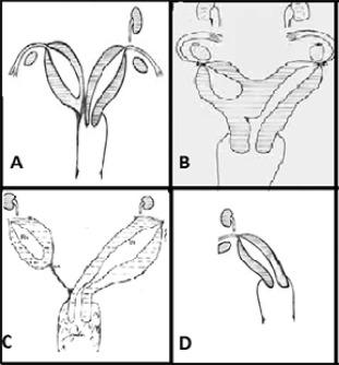 Variations in clinical presentation of unicornuate uterus