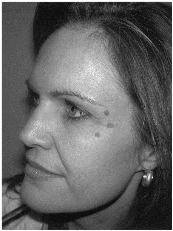Introduction to cosmetic dermatology - ScienceDirect