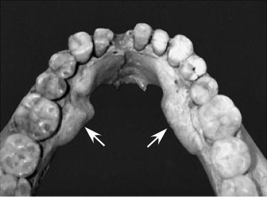 frequency of mandibular tori in prehistoric and historic japanese