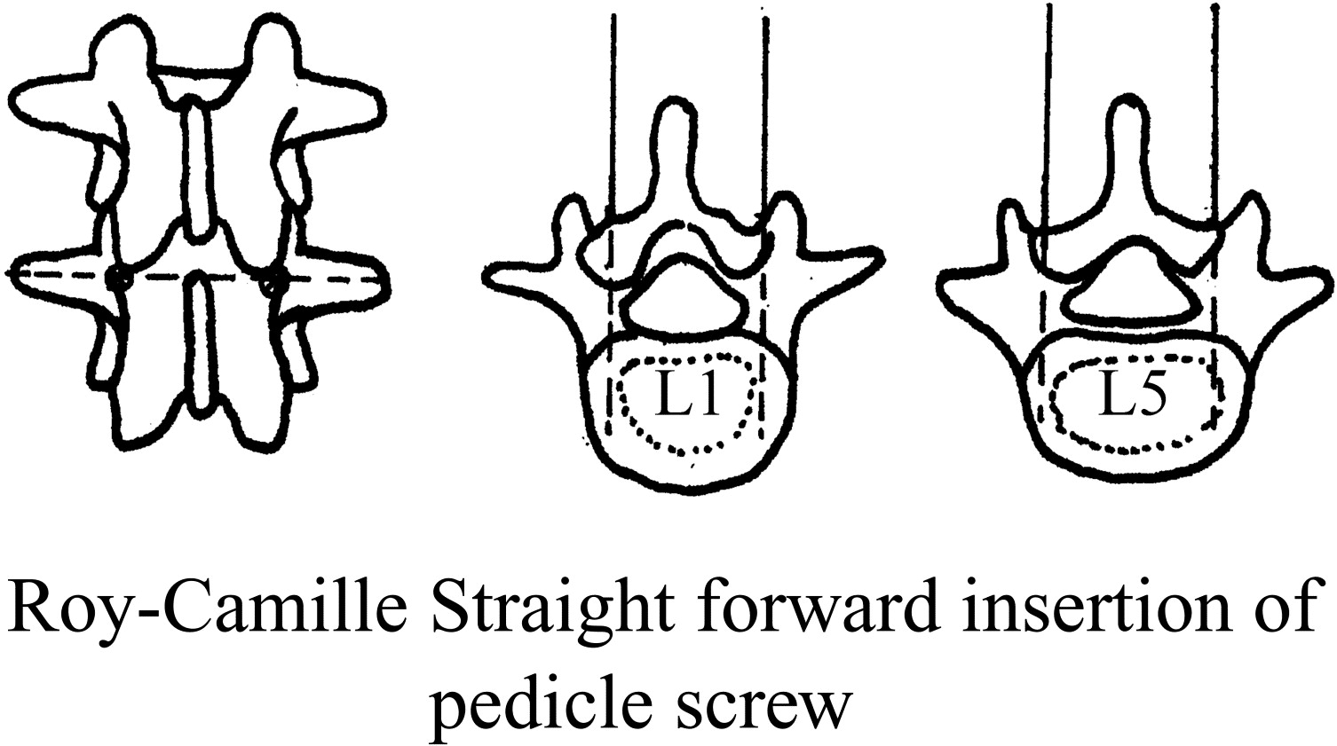 Surgical anatomy of the pelvis, sacrum, and lumbar spine relevant to ...