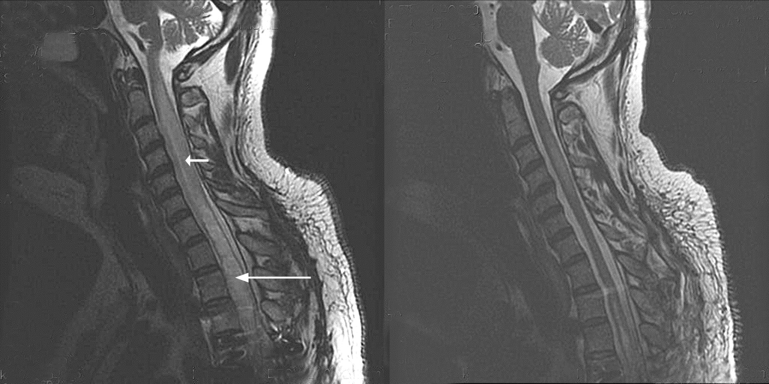 the left panel shows a t2 weighted mr image of a posttraumatic tethered spinal cord with regions of cystic necrosis large arrow and precystic - Tethered Spinal Cord
