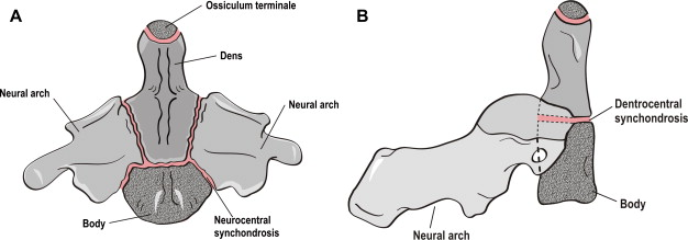 Cervical Spine Trauma In The Pediatric Patient Sciencedirect This paper reviews the relationship between cranial base. cervical spine trauma in the pediatric