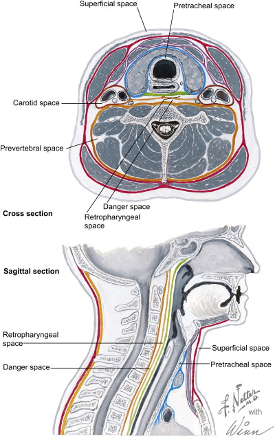 Deep Space Neck Infection: Principles of Surgical Management ...