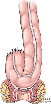 Colorectal/Coloanal Anastomosis Colonic J-Pouch, Coloplasty, Side-to ...