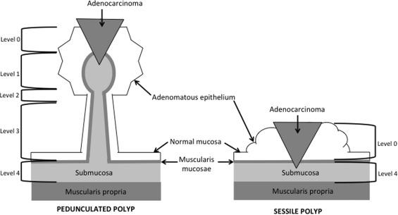 Management Of Malignant Polyps Sciencedirect