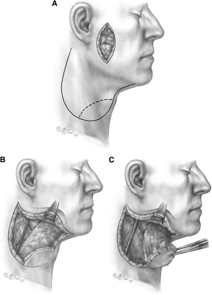 The Platysma Myocutaneous Flap Sciencedirect