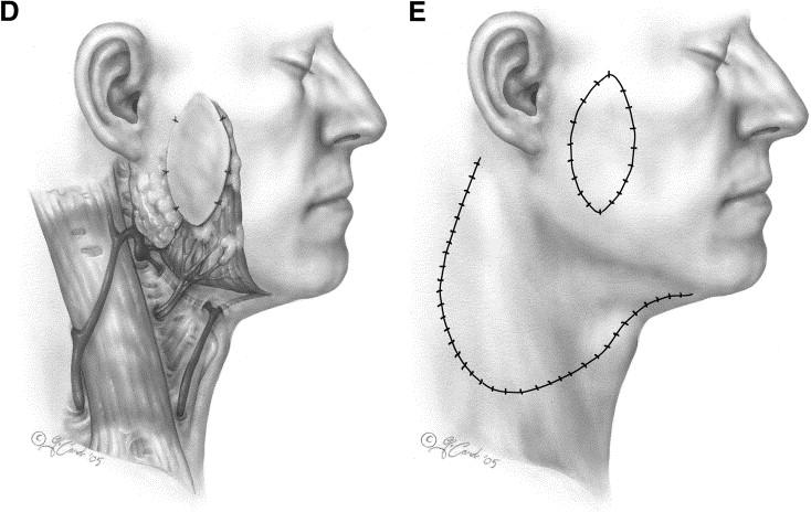 The platysma myocutaneous flap - ScienceDirect