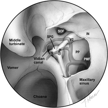 Endoscopic Anatomy Of The Pterygopalatine Fossa Sciencedirect
