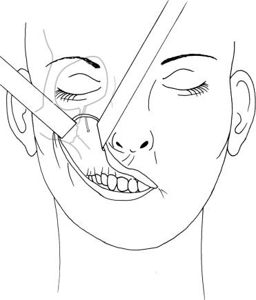zygomatico orbito maxillary plex fractures sciencedirect External Fixator Leg download full size image