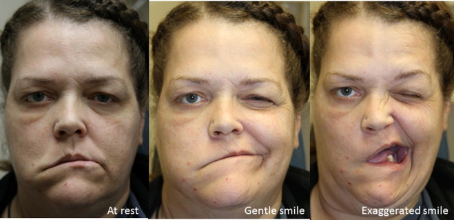 Selective chemodenervation with botulinum toxin in facial
