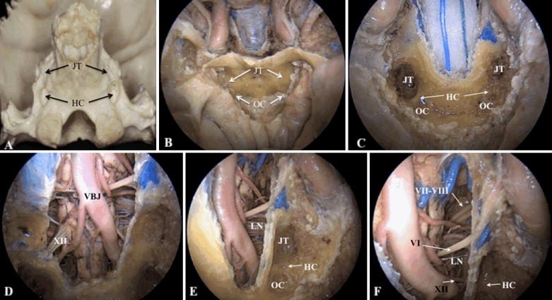 Endoscopic Endonasal Far Medial Transclival Approach Surgical