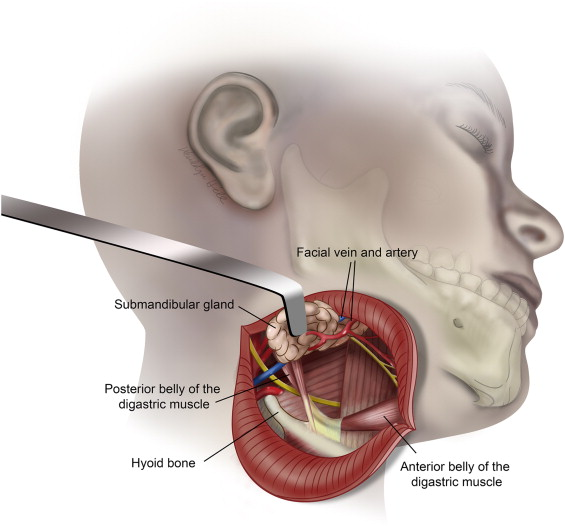Surgical Management Of Parapharyngeal Space Infections Sciencedirect