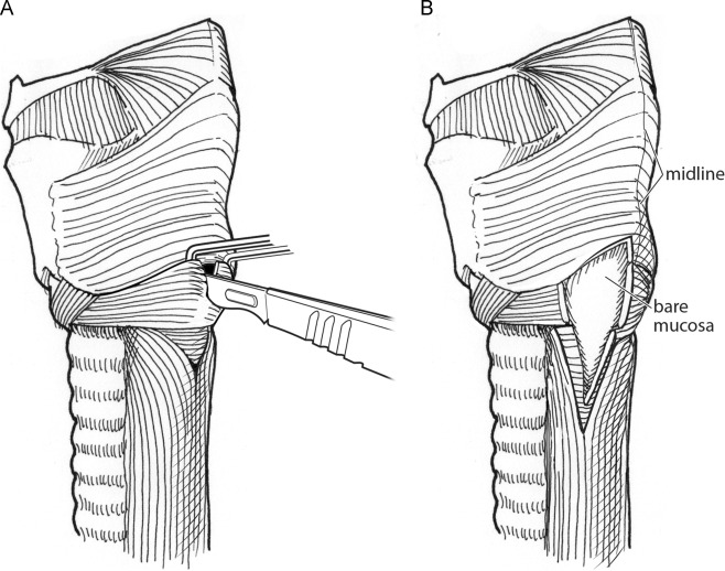 Open Approaches To Cricopharyngeal Hypertonicity And Hypopharyngeal