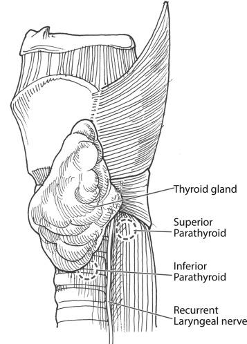 Essentials Of Parathyroid Imaging Sciencedirect