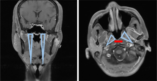 Management Of Parapharyngeal And Retropharyngeal Space Infections