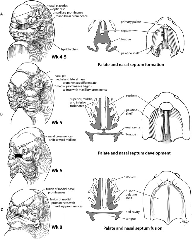Pediatric Anatomy: Nose and Sinus - ScienceDirect