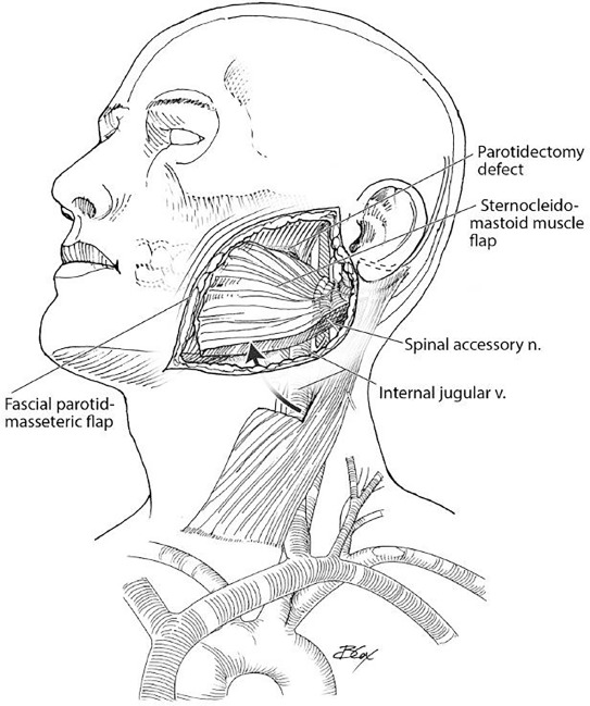 Prevention Of Frey Syndrome
