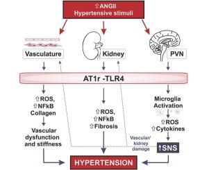 II tipo hipertenzija