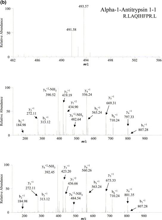 Quantitative Analysis Of The Low Molecular Weight Serum Proteome