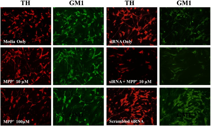 siRNA-mediated knockdown of B3GALT4 decreases GM1