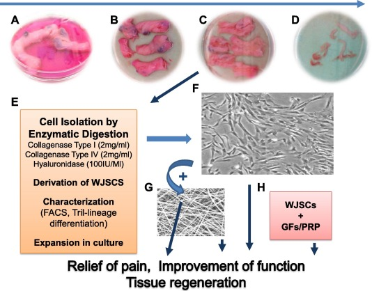Mesenchymal stem cells in regenerative medicine: Focus on