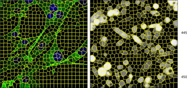 Analysis of live cell images: Methods, tools and