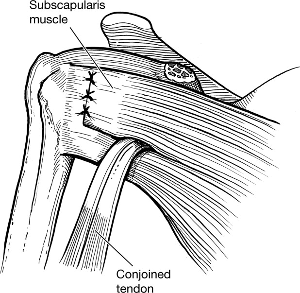 Bone Defects In Anterior Instability Of The Shoulder Diagnosis And