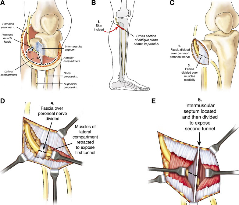 Prophylactic and Therapeutic Peroneal Nerve Decompression for ...