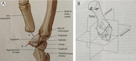 Anatomy And Biomechanics Of The Thumb Carpometacarpal Joint