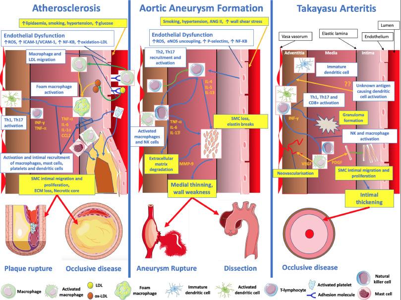 Imaging aortic wall inflammation - ScienceDirect