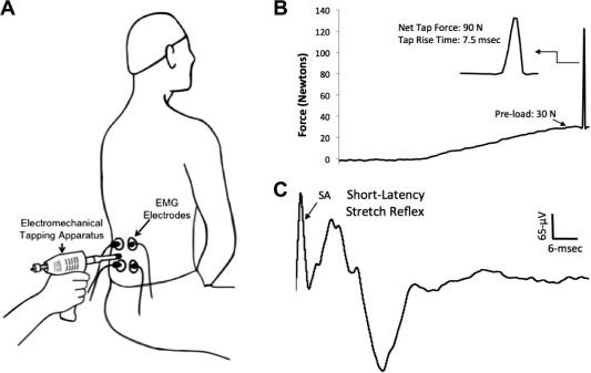 Non Thrust Manual Therapy Reduces Erector Spinae Short Latency