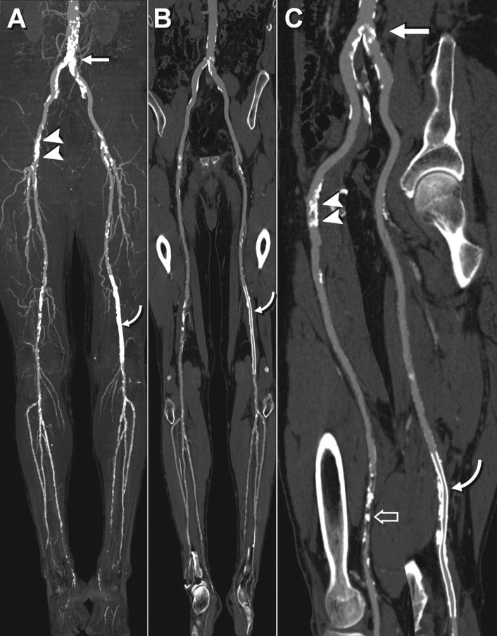 CT Angiography of Peripheral Arterial Disease - ScienceDirect