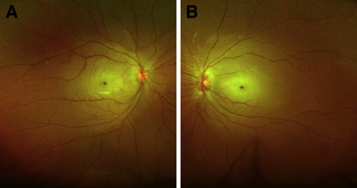 Bilateral Central Retinal Artery Occlusion in a Patient with