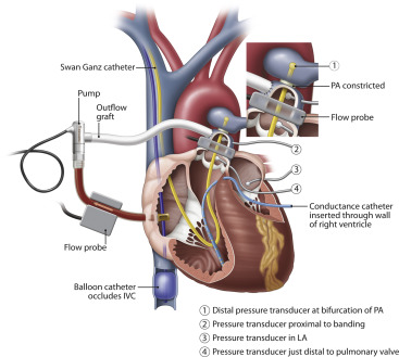 Low Flow Support Of The Chronic Pressureoverloaded Right Ventricle