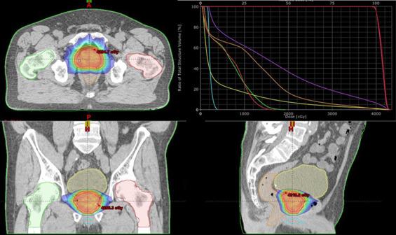 mri per lo screening per il cancro alla prostata