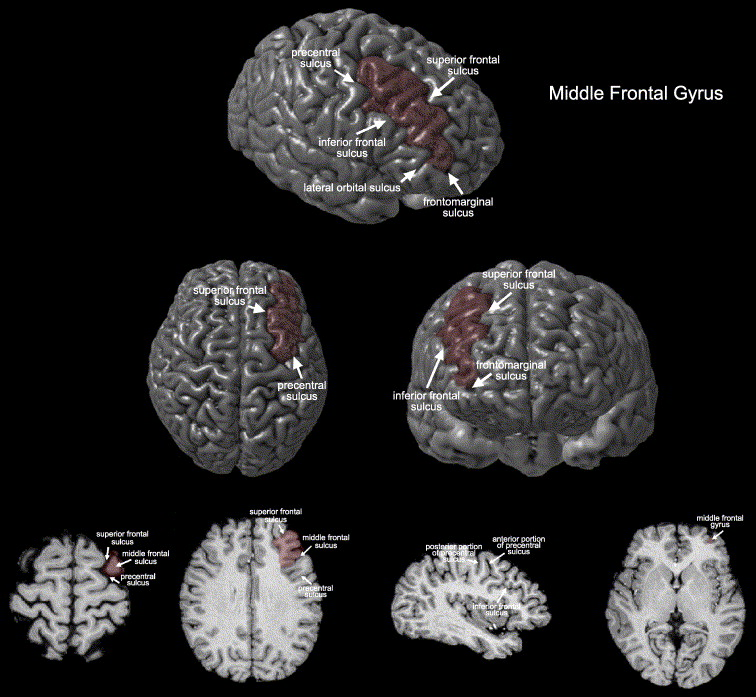Gender Differences In The Left Inferior Frontal Gyrus In Normal