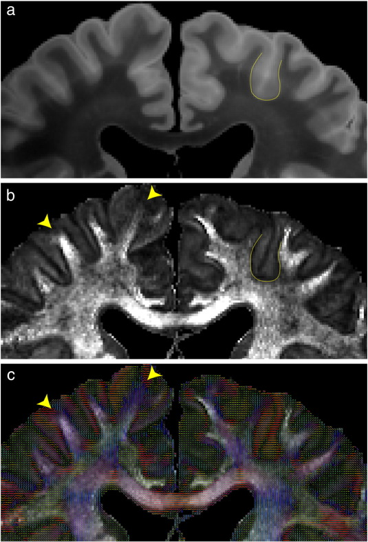 Diffusion imaging of whole, post-mortem human brains on a