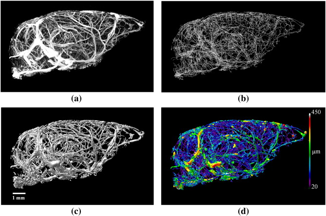 Automatic Anatomical Labeling Of The Complete Cerebral Vasculature