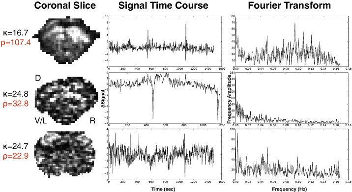 Differentiating BOLD and non-BOLD signals in fMRI time