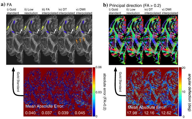 Interpolation of diffusion weighted imaging datasets - ScienceDirect