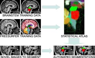 Bayesian segmentation of brainstem structures in MRI - ScienceDirect
